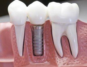 dental implants spring valley nv