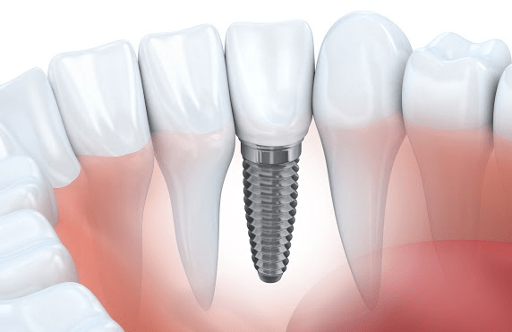What Is A Bone Graft?