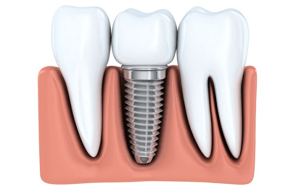 Step-by-Step Guide for Getting a Dental Implant